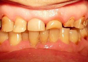 Nekariozny`e porazheniia zubov
